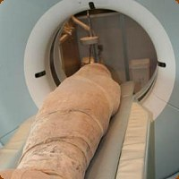 Strange bones in Colchester Egyptian Mummy